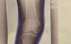 膝蓋骨骨折の症例と治療のご紹介。