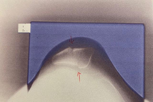 膝蓋骨骨折のレントゲン写真