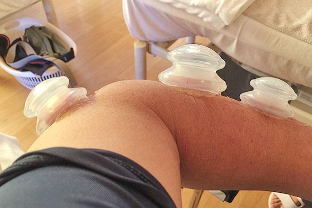 上腕骨外側上顆炎の症例と治療のご紹介。