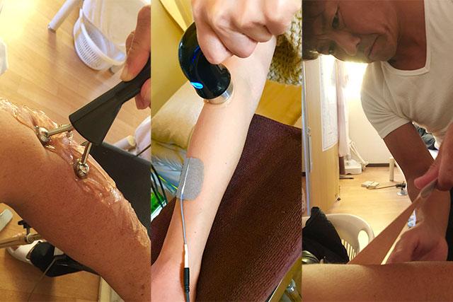 上腕骨外側上顆炎の治療写真