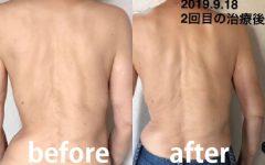 脊柱側弯症の症例と治療のご紹介。