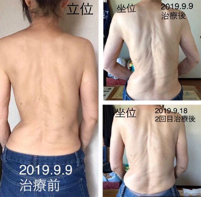 脊柱側弯症の治療のビフォーアフター写真1