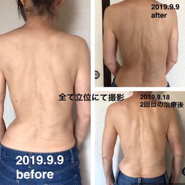 脊柱側弯症の治療のビフォーアフター写真2
