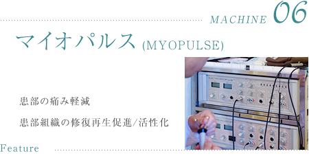 マイオパルス(MYOPULSE)